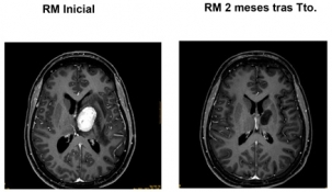 Valdecilla comienza con los tratamientos de radiocirugía en tumores y anormalidades funcionales cerebrales